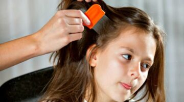 DIY Head Lice Removal: This Natural Lice Treatment Using Vinegar Is Effective!